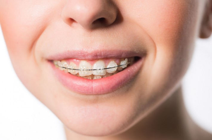Armonía dental y maxilar- brackets