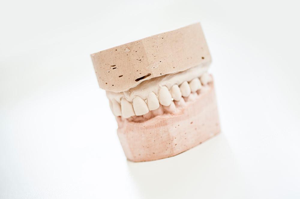 Análisis dental