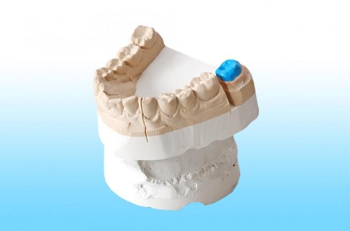 Anclaje para fundas dentales