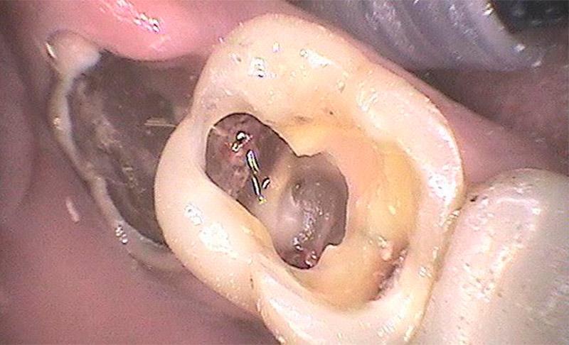 extraer muela del juicio con cirugia
