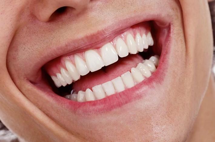 carillas dentales y fundas de porcelana