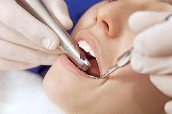 Colocación implantes dentales en donostia