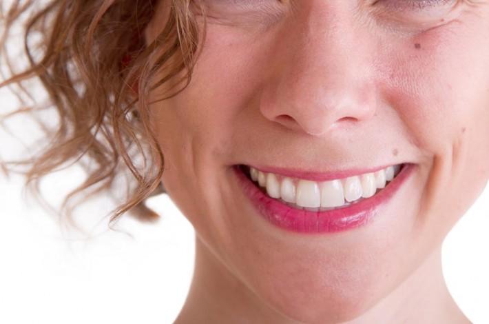 Estética de la sonrisa