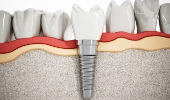 implante-dental-tornillo