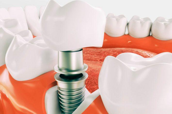 implantes dentales donostia