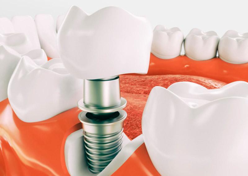 implantes-dentales-donostia