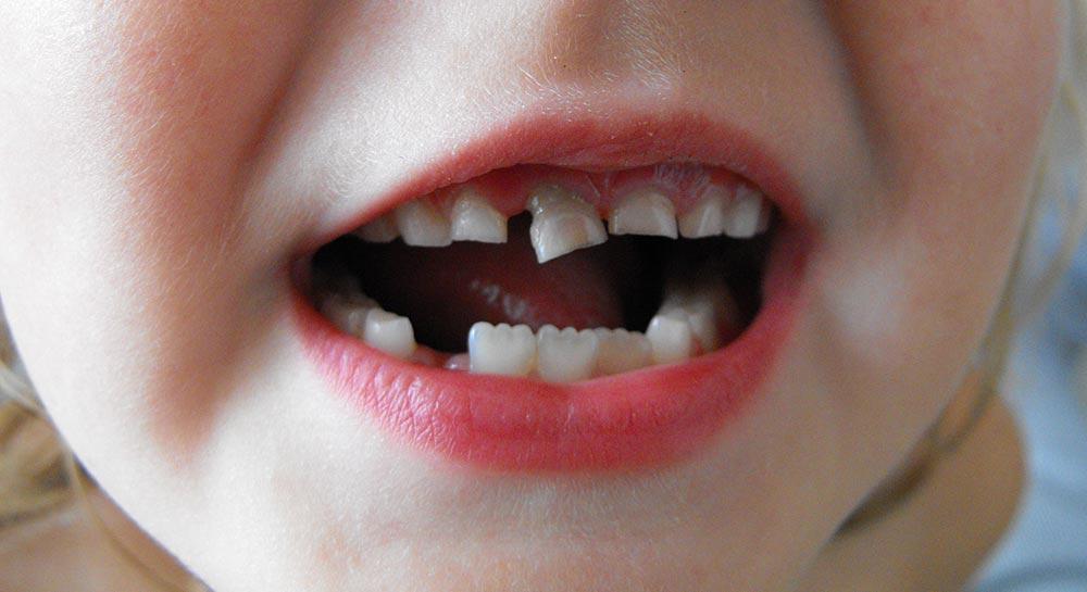 Уже понятно, что сновидения о зубах – важный знак.