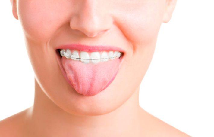 ortodoncia-adultos-donostia