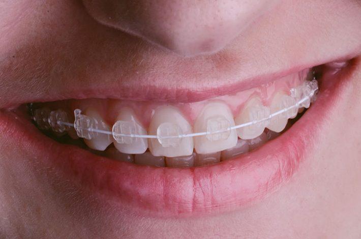 ortodoncia-estetica-donostia