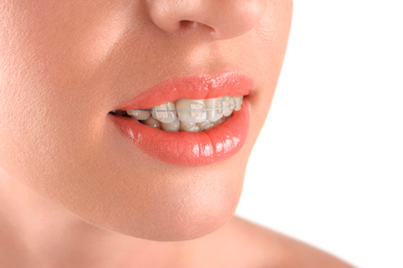 ortodoncia-estetica