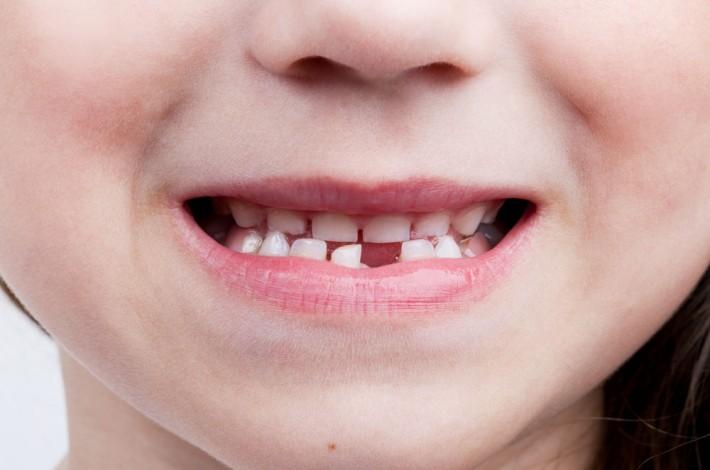 Edad revisión ortodoncia niños