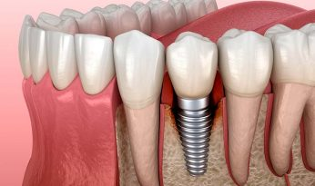 periimplantitis-implante