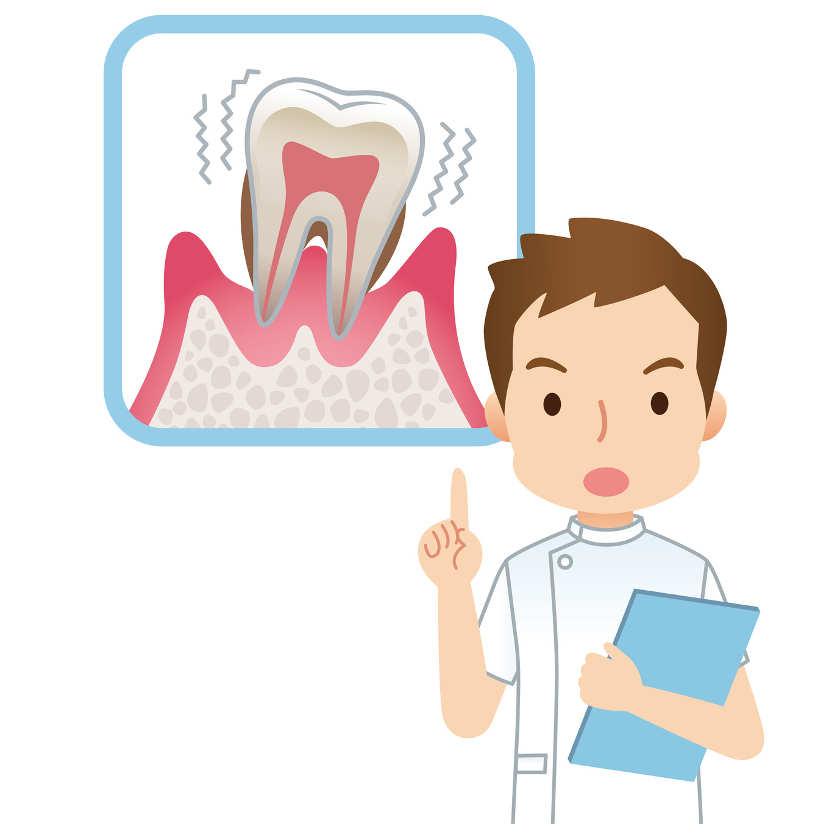 Concepto de periodontitis o piorrea