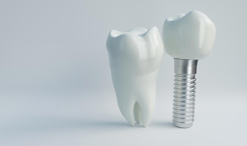 Prótesis dentales en Donostia