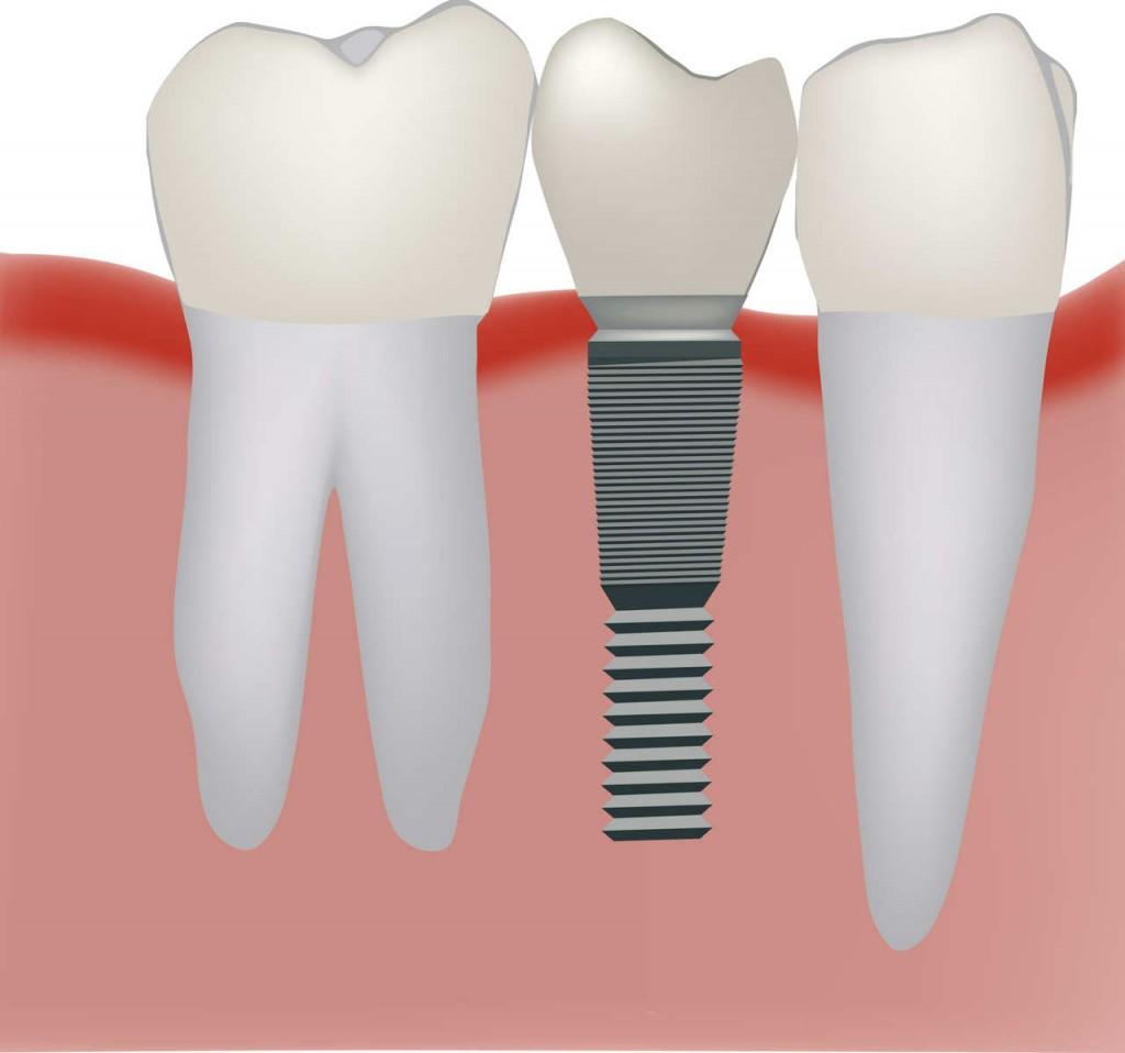 protesis-dentales sobre implantes donostia