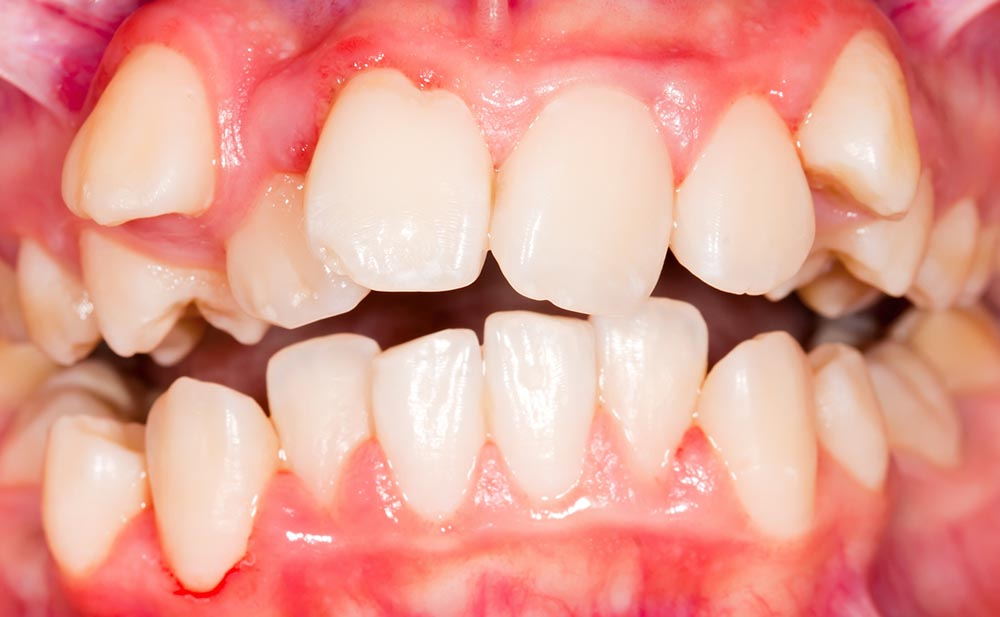Recuperar dientes impactados