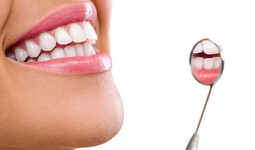 sonrisa-dientes