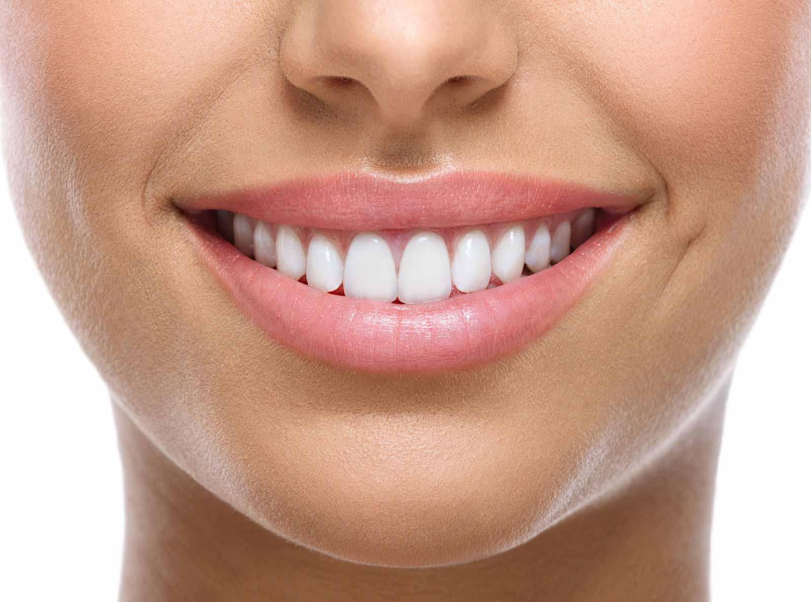 Tratamiento estetica dental