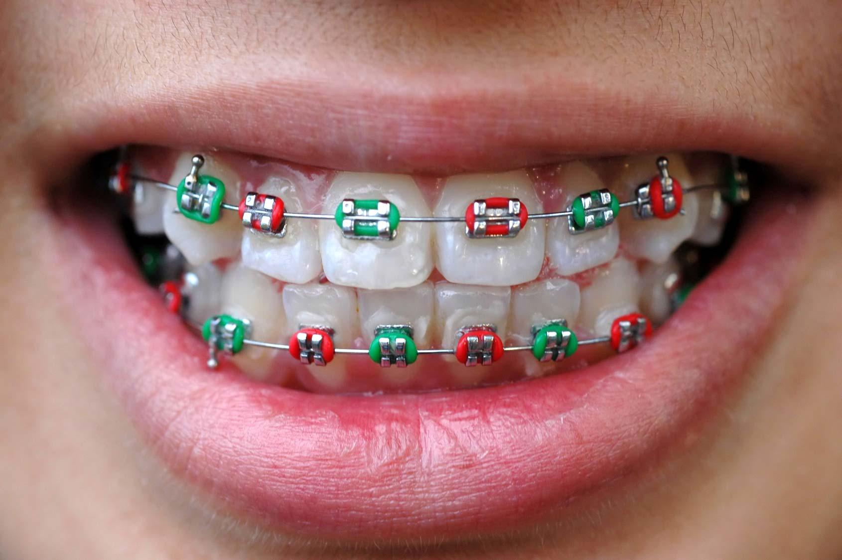 Tratamiento ortodoncia donostia