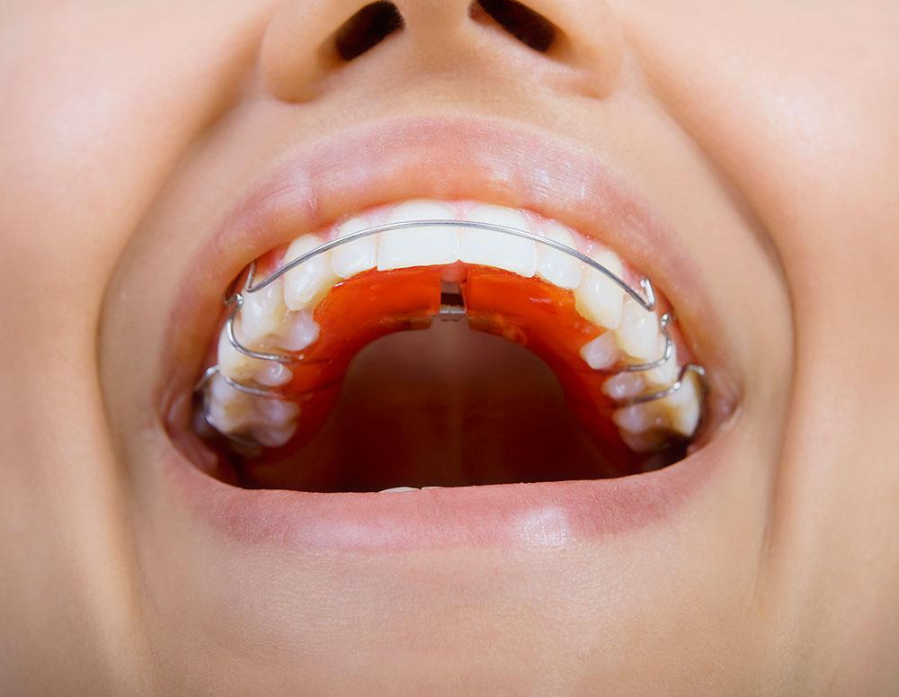 Tratamientos y tecnicas de ortodoncia