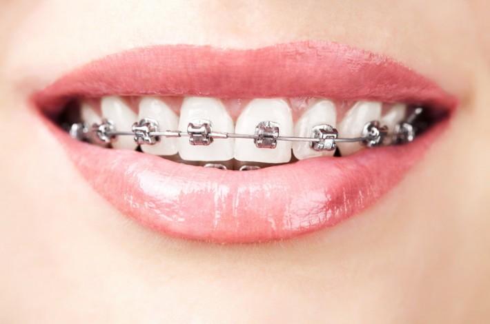 Urgencias en ortodoncia